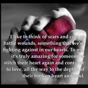 I like to think of scars and cuts as battle wounds, something that we're fighting against in our hearts. To me, it's truly amazing for someone to stitch their heart again and continue to love, all the way to the depths of their broken heart and soul.
